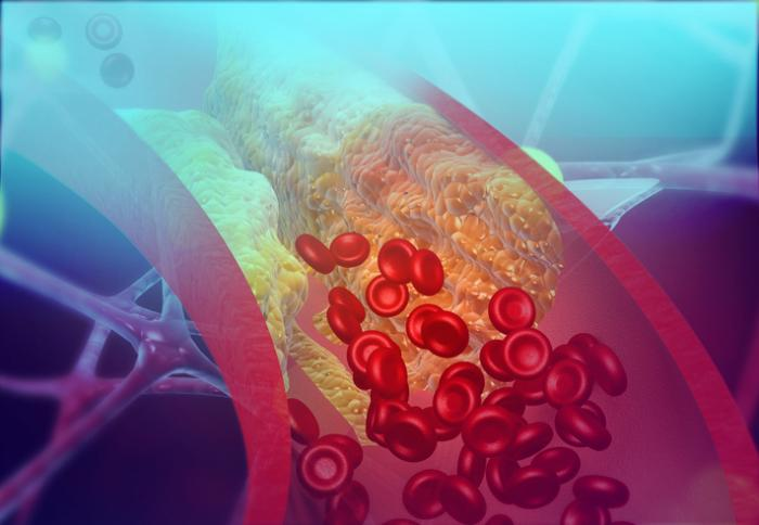 Cholesterol: The Good, the Bad and the Dietary